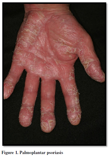 Scitech Palmoplantar Pustulosis A Distinct Entity With