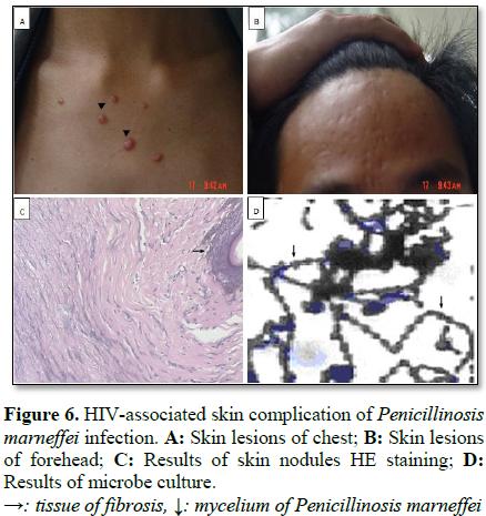 SCITECH - Preliminary Study of Nine AIDS-Associated Skin