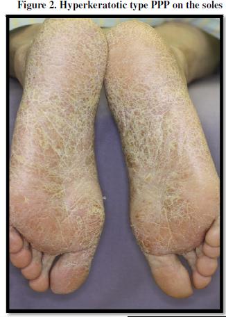 psoriasis pustulosa palmoplantar pdf free