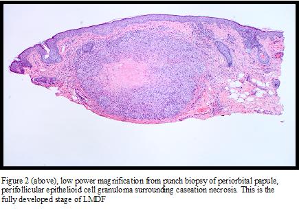 cutaneous lupus